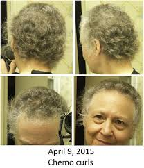 chemo curl hairstyle protocols cancer survivors network