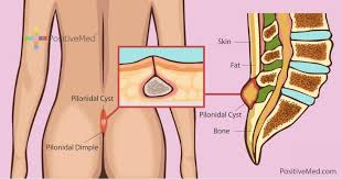 pilonidal cyst location what is pilonidal disease and ways to treat it naturally positivemed