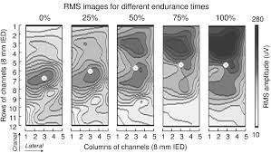 surface emg and muscle fatigue multi channel approaches to the
