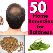 Home Remedies For Hair Loss For Over 50   50 home remedies for baldness diy find home remedies