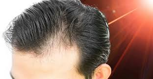 low level light therapy hair does laser hair growth work here are your options for lllt hair