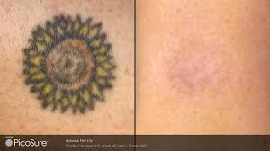 picosure tattoo removal advanced skin and vein care