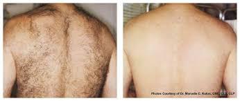 laser hair removal manhattan ks junction city ks clay center ks