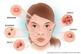 How To Get Rid Of Blind Pimples Acne