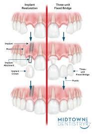 What Is Root Bridge Hybrid Denture And Dental Implant Bridge Explained Houston Implants