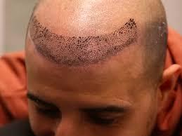 scalp micropigmentation hair tattoos give balding men new hair