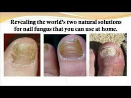 94 best nail fungus images on pinterest fungi fungus treatment