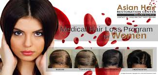 hair transplant costs in the philippines asian hair restoration center