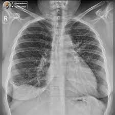global radiology cme globalradcme twitter