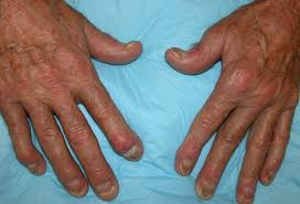 Signs And Symptoms Of Blindness Psoriatic Arthritis Symptoms Treatment Diagnosis Diet Cause