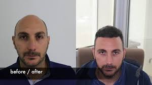 fue haircuts hair plantation awesome hair transplant before after fue hair