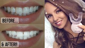 diy instant teeth whitening at home giveaway open youtube