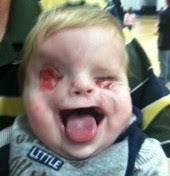 Blind Christian Baby With Cleft Lip And Eyes Pictures To Pin On Pinterest Thepinsta
