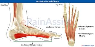 Top Foot Anatomy Abductor Hallucis Strain Symptoms Causes Treatment Cold Therapy