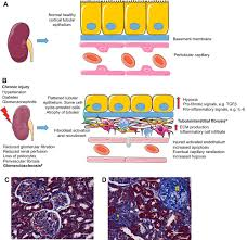renal disease pathophysiology and treatment contributions from