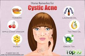 How To Get Rid Of Blind Pimples Home Remedies For Cystic Acne Top 10 Home Remedies