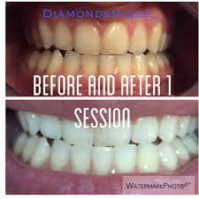 diamond smiles closed 18 photos cosmetic dentists winter
