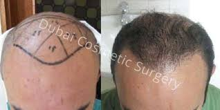 hair transplant costs in the philippines best hair transplant in dubai abu dhabi before after dubai