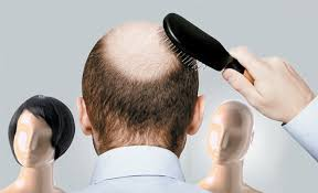 bald spor hair styles collections of hairstyles that hide bald spots cute hairstyles