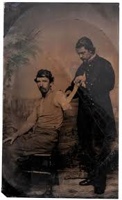 149 best civil war injuries images on pinterest civil wars