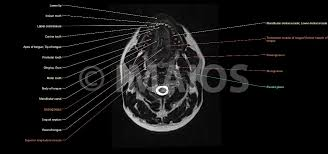 Neck Cross Sectional Anatomy Anatomy Of The Face And Neck Mri