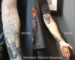 newskin tattoo removal tattoo 544 milford rd swansea ma