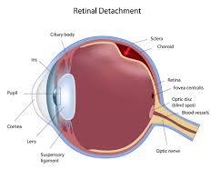 Sudden Blind Spot In Both Eyes Retinal Detachments Largo Retinal Tear St Petersburg Retina Tampa
