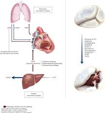 tricuspid and pulmonary valve disease hurst u0027s the heart 14e