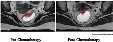 pre chemo represent mri graphs of rectal cancer before and after