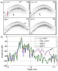 osa high speed spectral domain optical coherence tomography