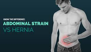 Stomach Pain When Using Bathroom Know The Difference Abdominal Strain Vs Hernia