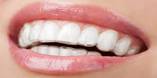 crest 3d white whitestrips with light teeth whitening kit teeth whitening strip reviews are they worth the effort dental