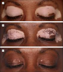 uvb light therapy for vitiligo the efficacy of afamelanotide and narrowband uv b phototherapy for