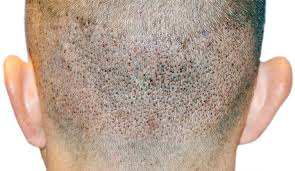 fue haircuts fue vs fut hair transplant advanced hair restoration