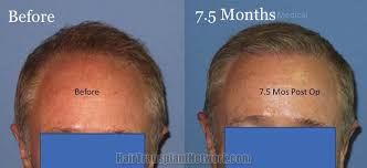 hair transplant month by month pictures hair transplant surgery before and after result photographs with