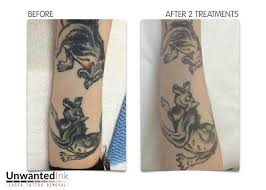 104 best laser tattoo removal sydney unwanted ink tattoo removal