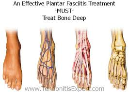 Planters Fasciitis Surgery by 497 Best Plantar Fasciitis Relief Images On Pinterest Foot Pain