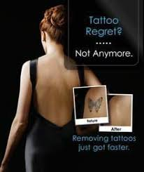 picosure laser tattoo removal enlighten laser tattoo removal