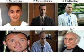 different types of receding hairlines norwood scale asses your hair loss with pics celebrity exles