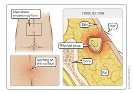 pilonidal cyst location shelley li wen chen medical illustrator toronto canada
