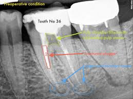 What Is Root Bridge Root Canal System Calcifications Endomontreal