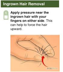 how to remove engrown hair onunderwear line musely