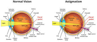 Astigmatism Night Blindness What Is Astigmatism Causes Symptoms Treatment In Children And