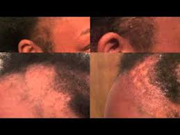 dr miracle hair dr miracles does work temple and nape balm review youtube