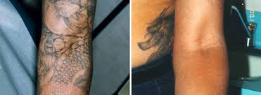 tattoo removal before and after dark skin best tattoo 2017