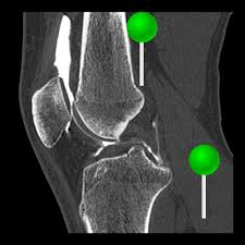 Interactive Knee Anatomy E Anatomy Radiologic Anatomy Atlas Of The Human Body