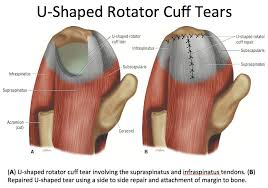 Subscapularis And Supraspinatus Theshoulder Hashtag On Twitter