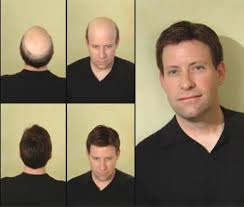 male hair extensions before and after hair replacement for men millennium hair