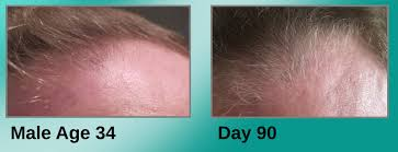 how dht causes hair loss u2013 joe knows hair