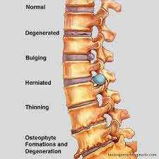 back pain worse after inversion table can an inversion table heal a herniated disc escaping the midwest